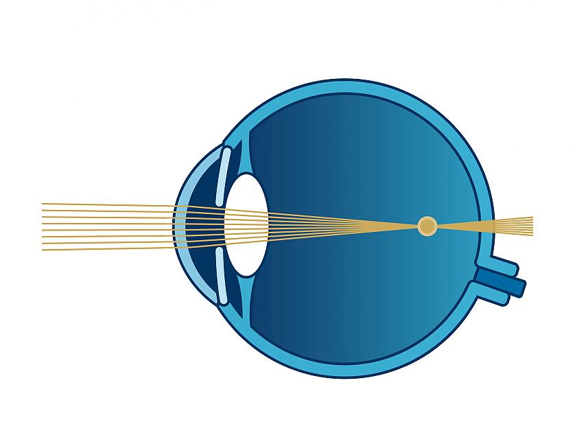 Schema Sehfehler Kurzsichtigkeit | VisuLASE Augenlaserzentrum Weilheim