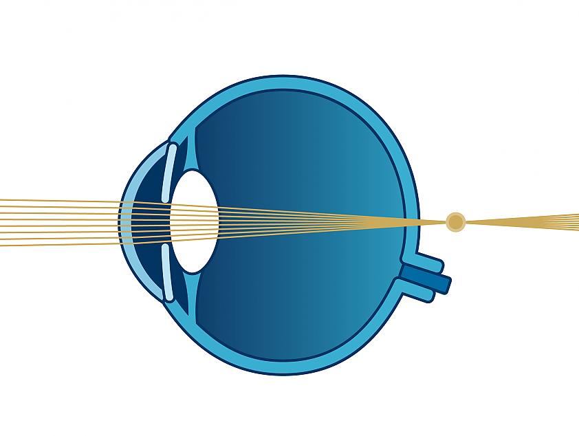 Schema Sehfehler Weitsichtigkeit | VisuLASE Augenlaserzentrum Weilheim